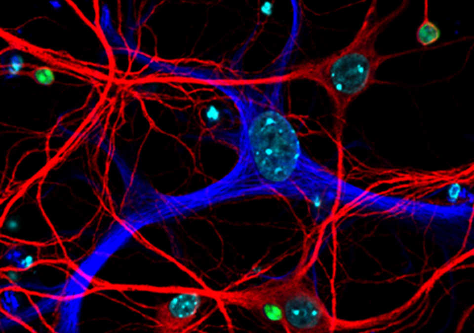 Robust Control of a Brain-Persisting Parasite through MHC I Presentation by Infected Neurons
